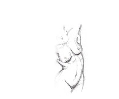 Drawing of the outcome from breast revision surgery