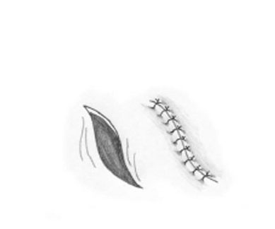 Drawing of scars for a skin cancer removal surgery